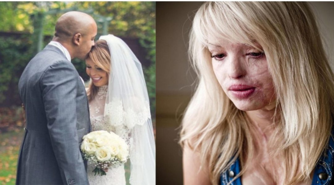 Rape Victim and A Survivor of Acid Attack – Katie Piper's Story Is Truly Inspiring